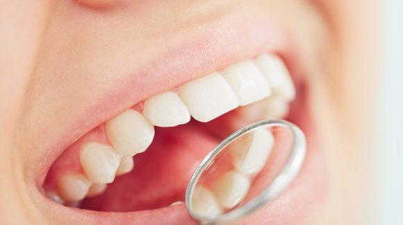 Le surfaçage dentaire